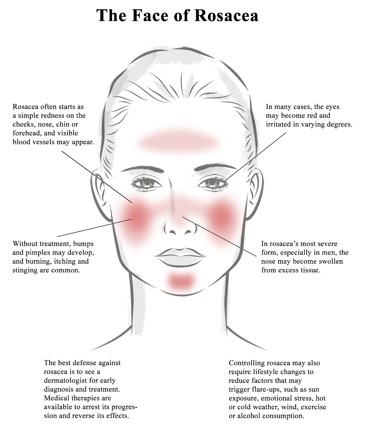 Rosacea Awareness Month Upstate Dermatology